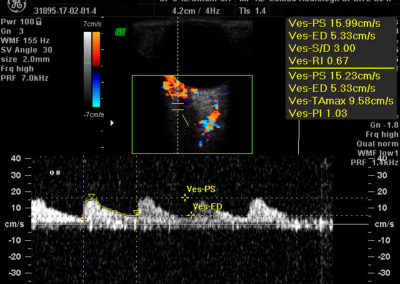 ultrasonografia-okulistyczna-3